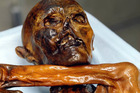 The 5300-year-old alpine mummy known as 'Otzi'. Photo / AP