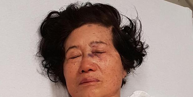 Loading Nancy Voon was viciously beaten during a carjacking in Auckland. Photo / Supplied
