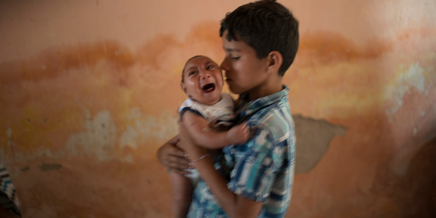 10-year-old Elison nurses his 2-month-old brother Jose Wesley, who was born with microcephaly. Photo / AP