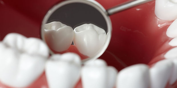 As well as the root-canal filling, the man had four crowns, tooth-whitening, adhesive restoration of several teeth and a veneer for a single-tooth denture. Photo / 123RF