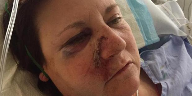 Chris Welch was seriously injured when her van and a car collided on State Highway 2 west of Tauranga. Photo / supplied