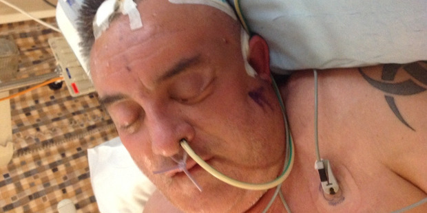 Chris Laird's wife Debbie found him unconscious on the bathroom floor at home in October 2014, after a massive stroke.