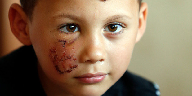 Tyree Walters, 6, was attacked by a dog and had his home burgled. His dead father's PlayStation was taken while he was being treated in hospital - that's all he wants returned. 25 October 2016 Northe