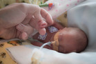 Jason Agnew holds his 25 week old premature baby Olivia hand in the NICU Ward at Auckland Hospital. Photo / Greg Bowker