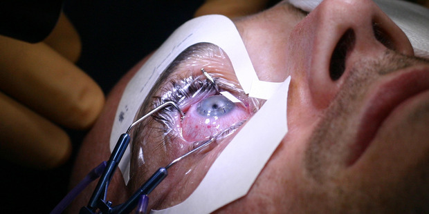 New research will investigate the drivers behind effects on eyes such as cataracts. Photo: File