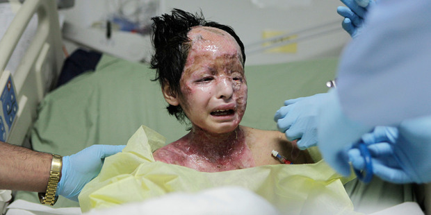 Razia, 8, was burned in 2009 by a white phosphorus bomb dropped on her home in Afghanistan. Photo / AP