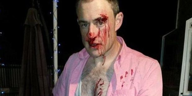"""Morgan said he was called a """"pink shirt wearing homo"""" and had ignored the jibes of the two men, but was attacked regardless. Photo / Kent Morgan"""