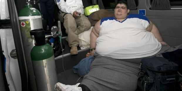 Juan Pedro Franco, who weighs almost 500kg, is receiving treatment at a hospital in Guadalajara, Mexico. Photo / AP