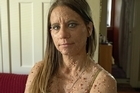 Libby Huffer from Indiana, USA, has a rare condition - Neurofibromatosis - that creates numerous bumps all over her body