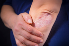 Psoriasis on elbows. Photo / Getty Images