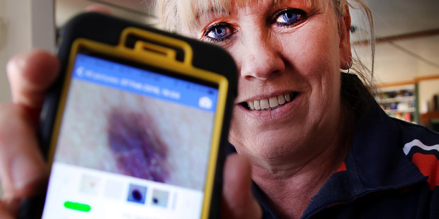 Loading SKIN SENSE: Marie Stantiall says a phone app that detects melanoma may have saved her life. Photo Stuart Munro