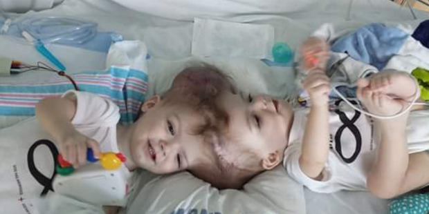 The twins shared every second of their lives together until last month. Photo / Facebook