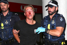 A bruised and bloodied teen is in tears as he is escorted by police with blood all over his face. Photo / Nathan Richter, Daily Mail