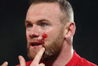 Wayne Rooney was left bloodied after clashing with All Whites captain Winston Reid. Photo / Getty