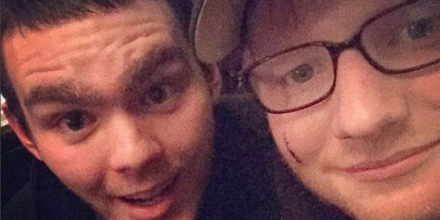 The cut on Ed Sheeran's face is clearly visible in this fan photo posted to Twitter.