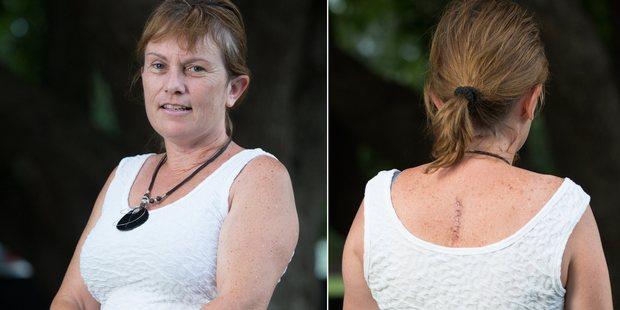 Christine Burnie shows the scar that an invasive malignant melanoma left. Photo / Greg Bowker