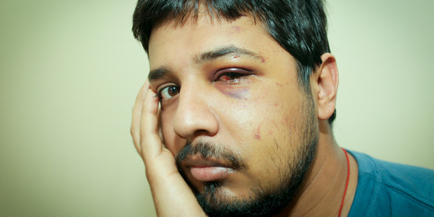 Shashi Sharma was attacked while delivering a pizza in Napier. Photo / Warren Buckland
