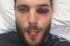 The photo posted to Mitchell McClenaghan's Twitter account after he was hit in the eye while batting at the Basin Reserve today. Photo / Supplied