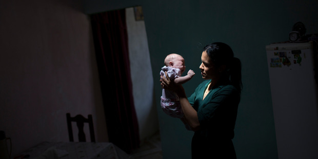 Babies born with defects linked to the Zika virus are at risk of vision problems. Photo / AP