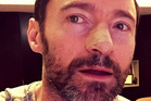 Hugh Jackman shared this photo of his treatment on Instagram.
