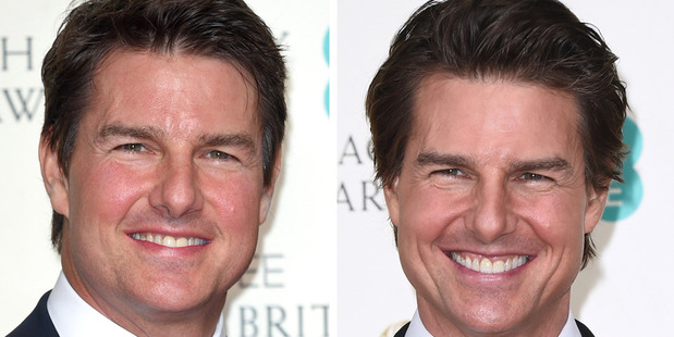 Tom Cruise has been accused of getting work done on his face after appearing 'puffy' at the 2016 Bafta awards (left), a big change from the same event last year (right).