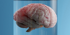 Human brains capable of thinking for themselves have been grown in a lab. Photo / iStock