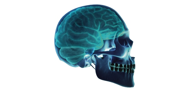 A study has found suicide rates among those who suffered concussions were three times the population norm. Photo / Getty