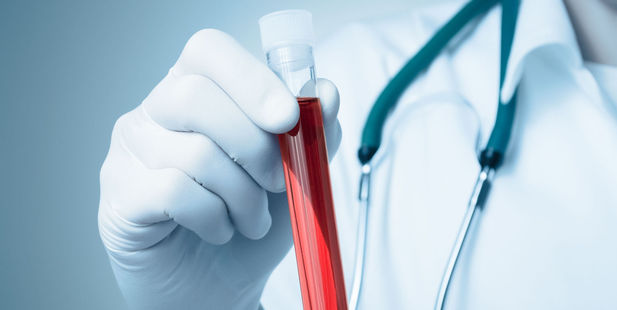 They believe biomarker patterns in the blood will help predict a person's probability of developing cancer, heart disease and type 2 diabetes. Photo / 123rf
