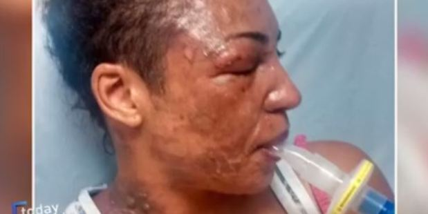 Images of badly scarred faces show the aftermath of alleged exploding NutriBullets documented in a segment on Today Tonight Adelaide. Photo / Today Tonight