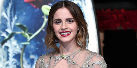 Emma says she has learnt to embrace her freckles. Photo / Getty