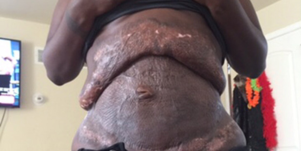 Quanna Browns stomach was left scarred and deformed. Photo / CATERS