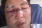 Rui Shu was viciously attacked by two men with a hammer and screwdriver in Whangarei. Photo / Supplied