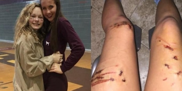 A teenager punched a shark on the nose to survive an attack  Photo / Twitter