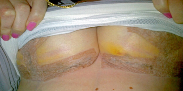 Abbey Thomas surgery scars after her breast reduction operaton. Photo / Caters News Agency