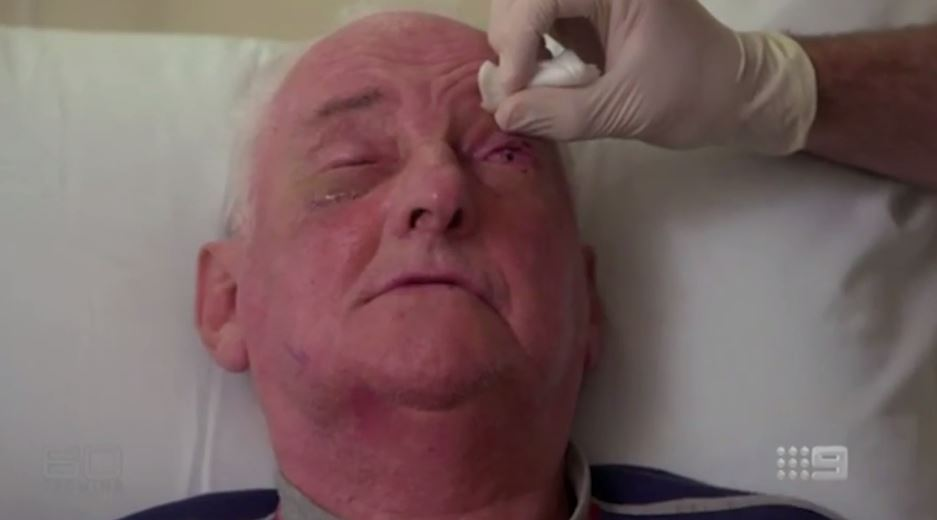 The 72-year-old has gradually lost his vision after contracting herpes simplex. Photo / Channel 9