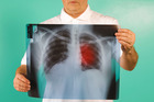 Lung cancer patients now have another treatment option. Photo/Getty Images