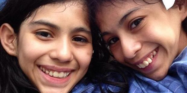 Lupita and Carmen Andrade, 16, were born joined from chest wall to pelvis. Photo / Twitter