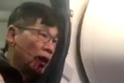 United Airlines reached a confidential settlement with Dr David Dao. Photo / Kaylyn Davis