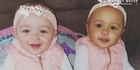 Watch: Watch: Twins of different colour mark first birthday