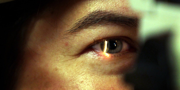 Auckland District Health Board provides most outpatient ophthalmologic services for the region.  Photo /  Stuart Munro