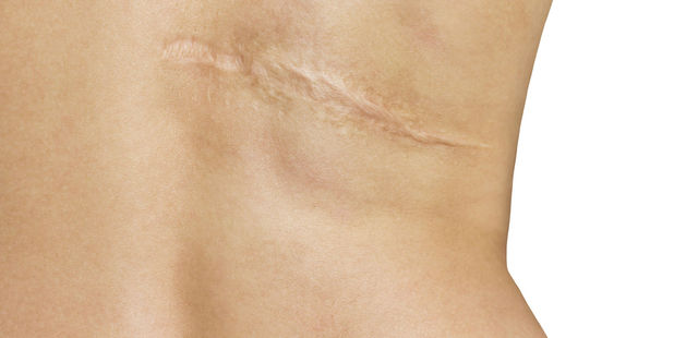 Scar-less wounds? Doctors have developed a way to heal wounds with skin cells, meaning it would vanish with no trace, providing relief to many. Photo / 123rf