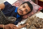 "A Bangladeshi man dubbed the ""tree man"" because of the bark-like warts on his body has undergone treatment that doctors hope may have cured him of his condition. Source: CNN"
