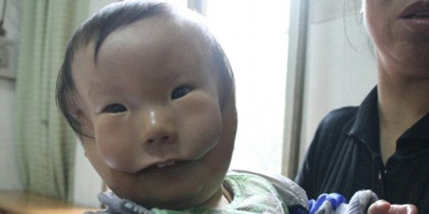 Huikang, born with a rare birth defect, waited to be treated in 2010.