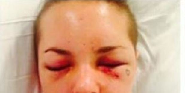 Photos posted to social media showed Christy Mack's injuries.