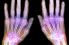 Try plant medicine to aid the symptoms of osteoarthritis. Photo / Getty Images
