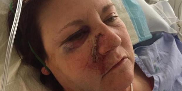 Christine Welch, a driving instructor who was seriously injured when her van collided with a car on State Highway 2 at Apata, west of Tauranga, on 24 September 2016. Photo/supplied