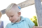 Otis has single sided deafness and does not have funding for his cochlear implant.