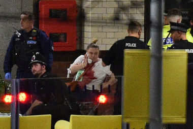 An injured concert goer is removed from the Manchester Arena after a huge explosion at the Ariana Grande concert. Photo / Daily Mail
