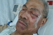 Aupito Pupu Lolesio, 79, suffered a bad gash after a fall at his local gym in Manukau on Tuesday. Photo / Supplied