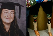 Sarah's European trip was turned on its head after she fell and snapped her prosthetic leg. Photo / Fair Go